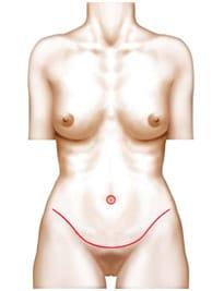 Abdominoplastie à reims Chiriac