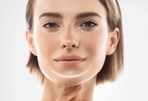 Lipostructure du visage à Reims Dr Chiriac
