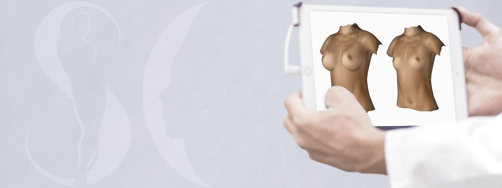 rendu 3D d'une simulation d'augmentation mammaire